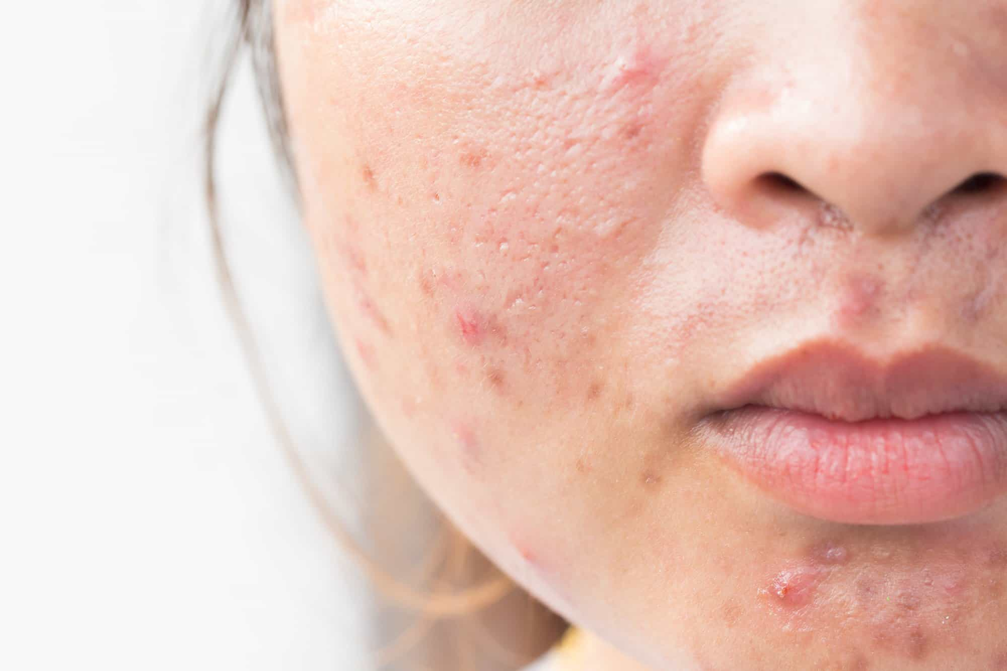 How To Get Rid Of Acne (Pimples) Fast